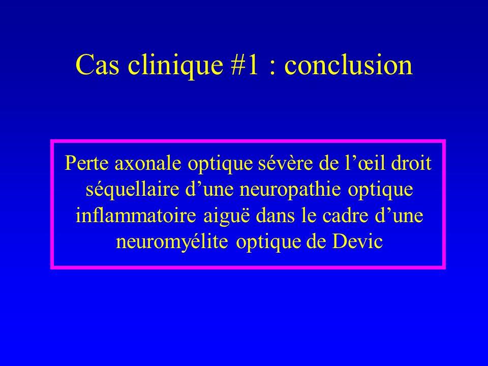 Cas clinique #1 : conclusion Perte axonale optique sévère de lœil droit séquellaire dune neuropathie optique inflammatoire aiguë dans le cadre dune neuromyélite optique de Devic