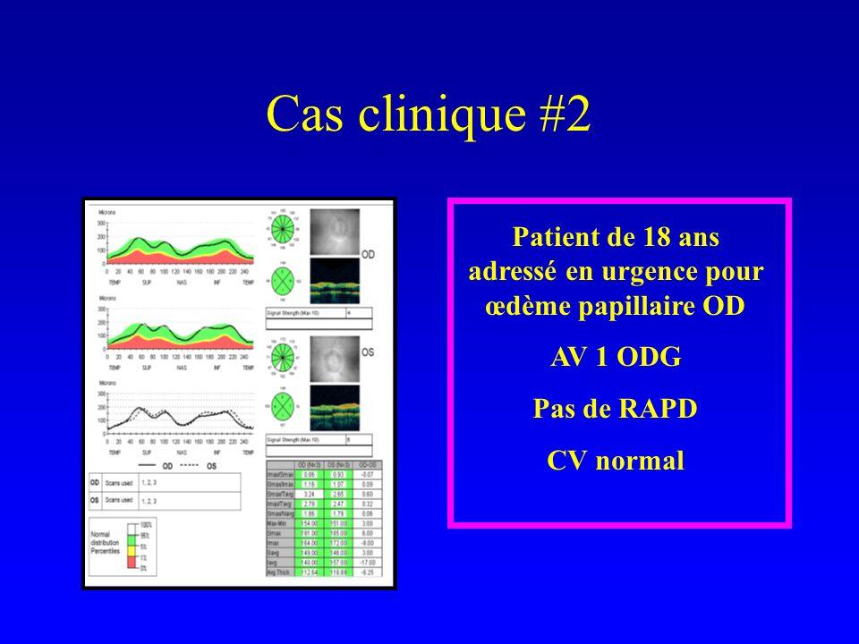 Cas clinique #2 Patient de 18 ans adressé en urgence pour œdème papillaire OD AV 1 ODG Pas de RAPD CV normal