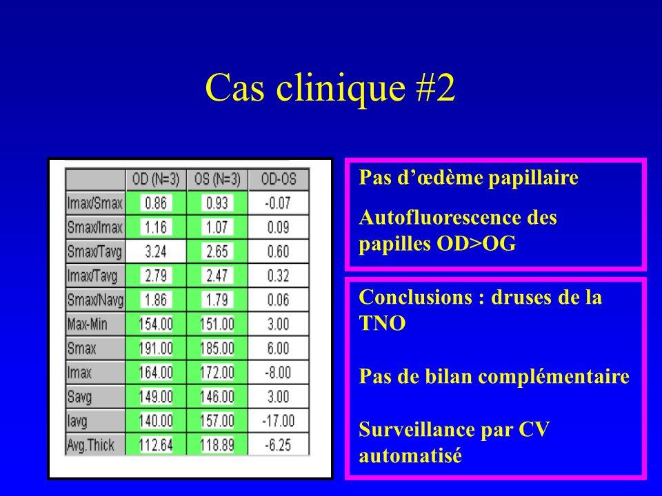 Pas dœdème papillaire Autofluorescence des papilles OD>OG Conclusions : druses de la TNO Pas de bilan complémentaire Surveillance par CV automatisé Cas clinique #2