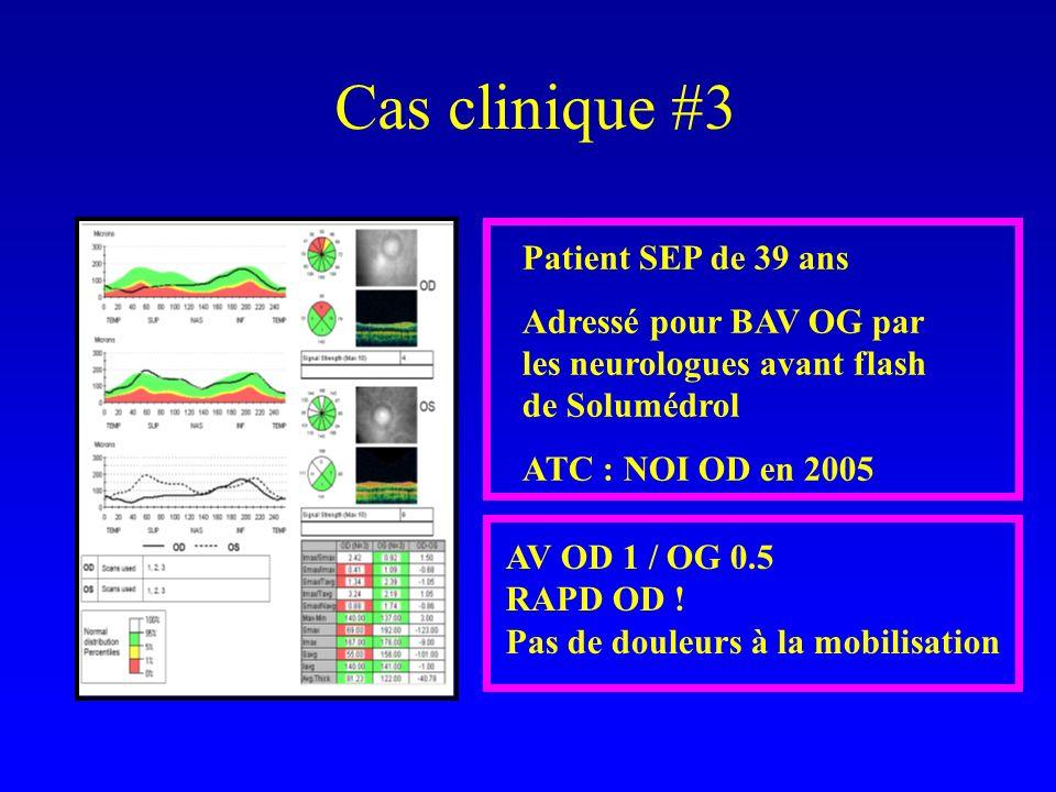 Cas clinique #3 Patient SEP de 39 ans Adressé pour BAV OG par les neurologues avant flash de Solumédrol ATC : NOI OD en 2005 AV OD 1 / OG 0.5 RAPD OD .