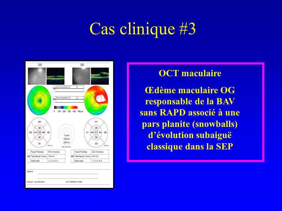 Cas clinique #3 OCT maculaire Œdème maculaire OG responsable de la BAV sans RAPD associé à une pars planite (snowballs) dévolution subaiguë classique dans la SEP