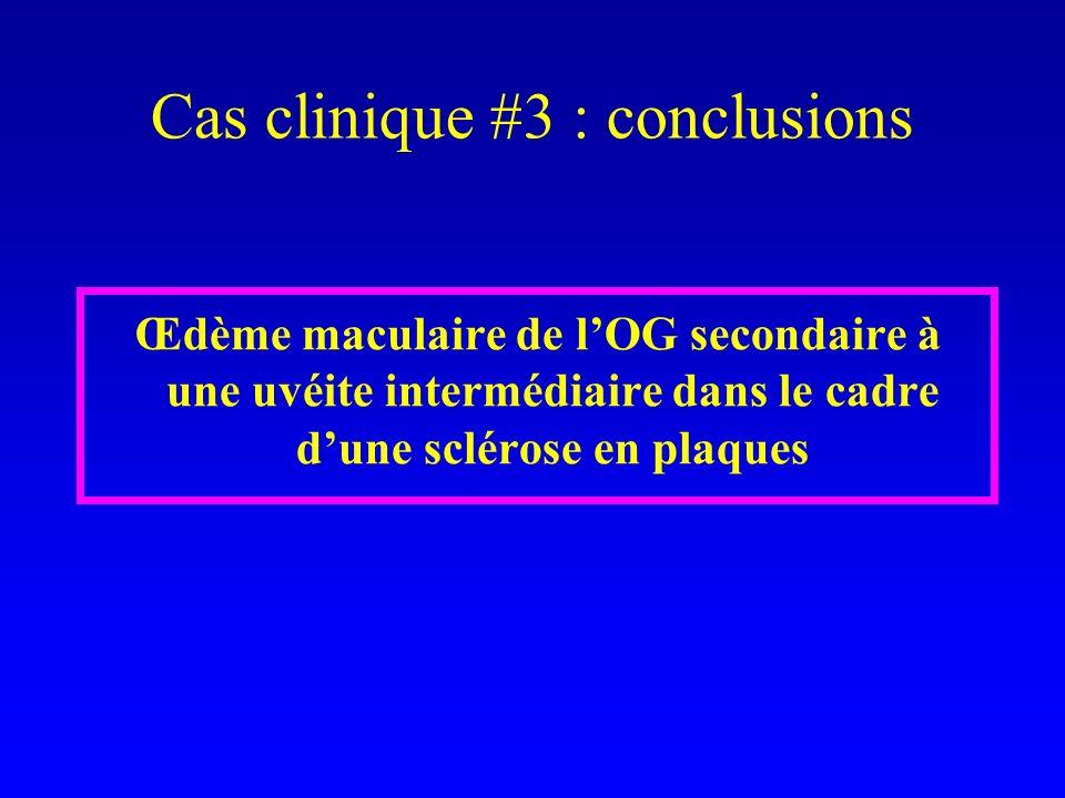 Œdème maculaire de lOG secondaire à une uvéite intermédiaire dans le cadre dune sclérose en plaques Cas clinique #3 : conclusions