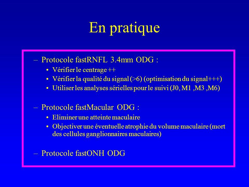 En pratique –Protocole fastRNFL 3.4mm ODG : Vérifier le centrage ++ Vérifier la qualité du signal (>6) (optimisation du signal+++) Utiliser les analyses sérielles pour le suivi (J0, M1,M3,M6) –Protocole fastMacular ODG : Eliminer une atteinte maculaire Objectiver une éventuelle atrophie du volume maculaire (mort des cellules ganglionnaires maculaires) –Protocole fastONH ODG