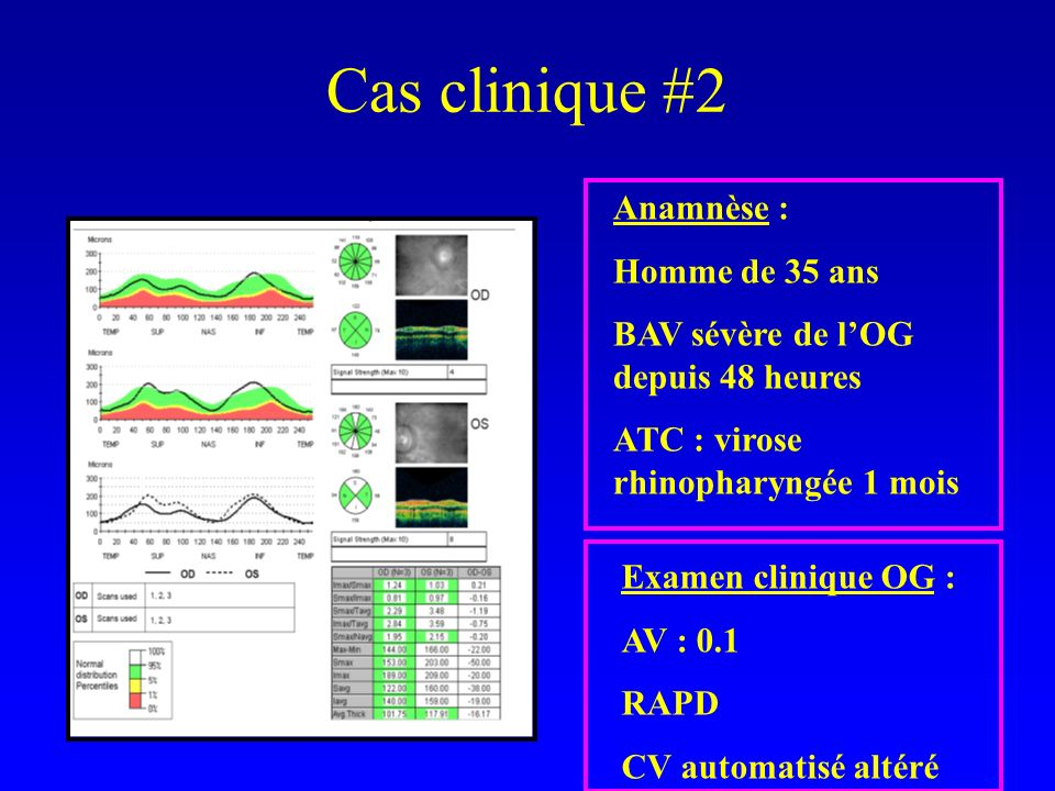Cas clinique #2 Anamnèse : Homme de 35 ans BAV sévère de lOG depuis 48 heures ATC : virose rhinopharyngée 1 mois Examen clinique OG : AV : 0.1 RAPD CV automatisé altéré