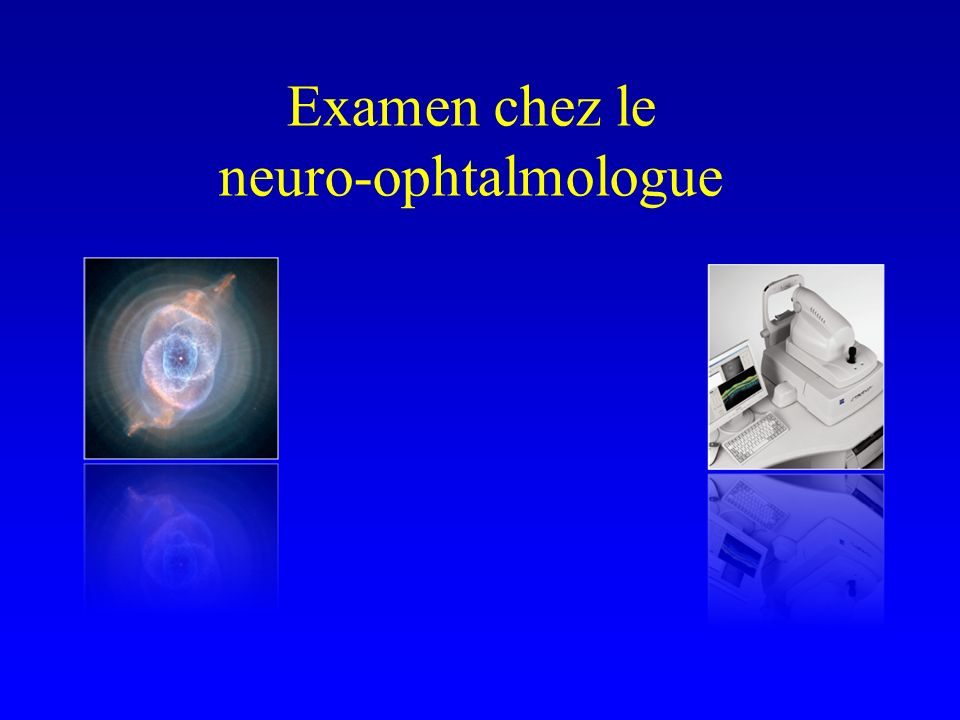 Cas clinique #1 Examen de lOD à M6 : AV 0.3 RAPD Pâleur papillaire CV automatisé altéré Pas de douleurs à la mobilisation du globe