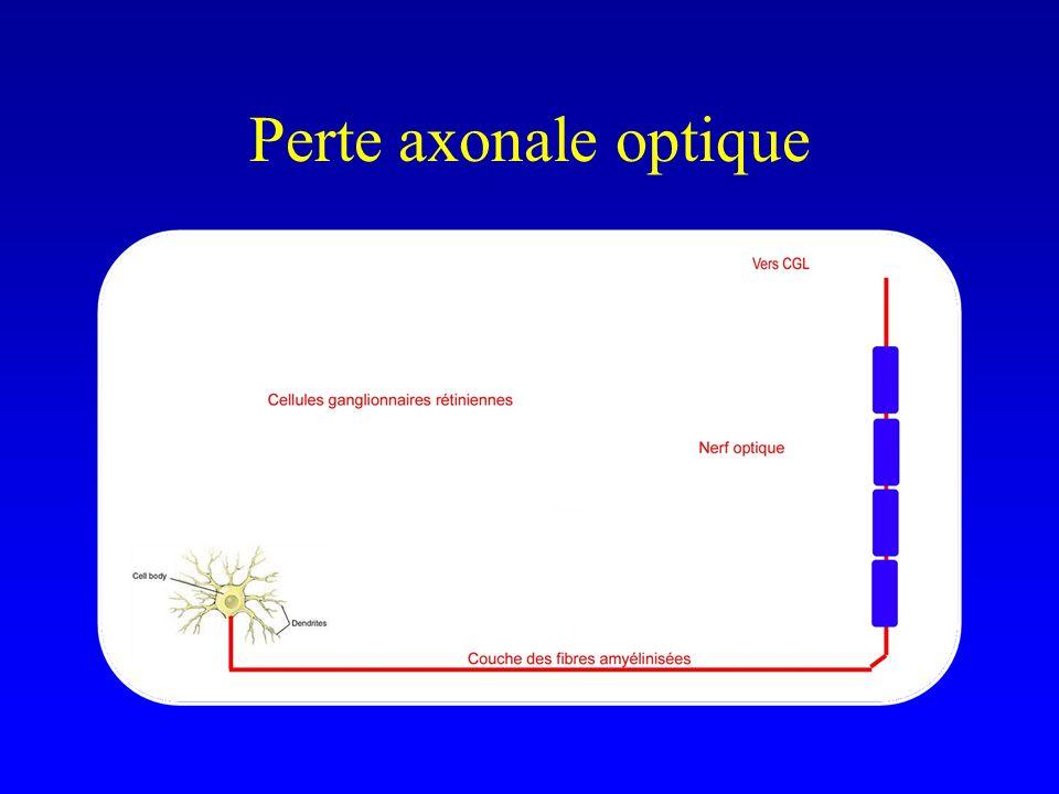 Perte axonale optique