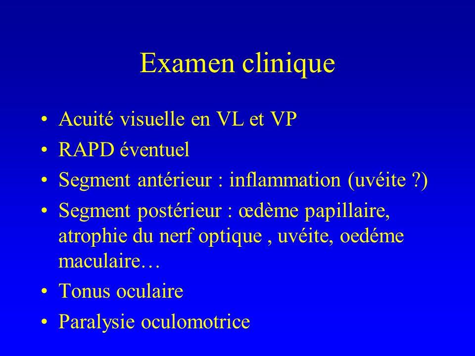 Examen clinique Acuité visuelle en VL et VP RAPD éventuel Segment antérieur : inflammation (uvéite ?) Segment postérieur : œdème papillaire, atrophie du nerf optique, uvéite, oedéme maculaire… Tonus oculaire Paralysie oculomotrice