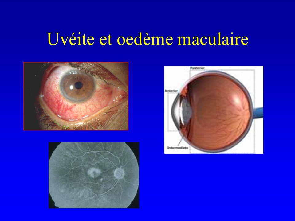 Uvéite et oedème maculaire