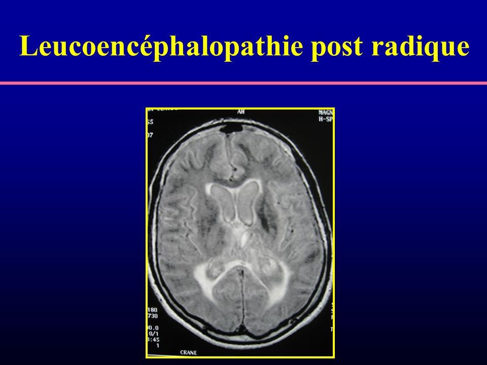Leucoencéphalopathie post radique