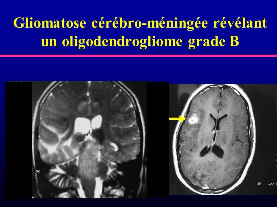 Gliomatose cérébro-méningée révélant un oligodendrogliome grade B