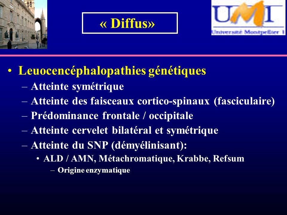 Leuocencéphalopathies génétiques –Atteinte symétrique –Atteinte des faisceaux cortico-spinaux (fasciculaire) –Prédominance frontale / occipitale –Atte