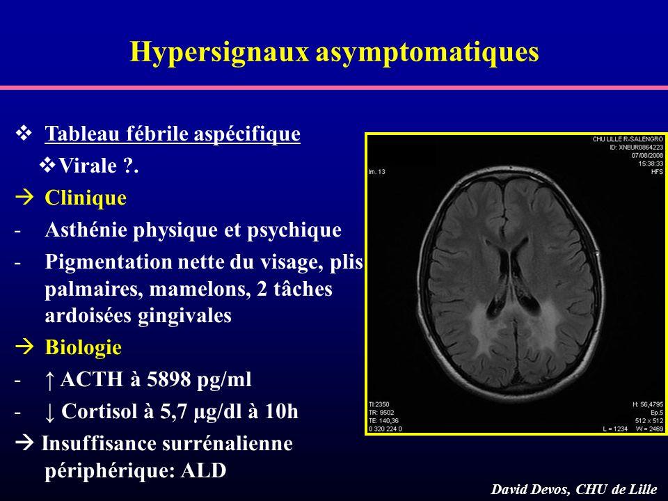Hypersignaux asymptomatiques Tableau fébrile aspécifique Virale ?. Clinique -Asthénie physique et psychique -Pigmentation nette du visage, plis palmai