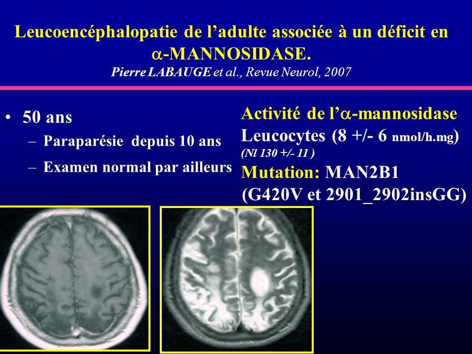 Leucoencéphalopatie de ladulte associée à un déficit en -MANNOSIDASE. Pierre LABAUGE et al., Revue Neurol, 2007 50 ans –Paraparésie depuis 10 ans –Exa