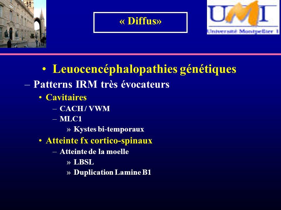 Leuocencéphalopathies génétiques –Patterns IRM très évocateurs Cavitaires –CACH / VWM –MLC1 »Kystes bi-temporaux Atteinte fx cortico-spinaux –Atteinte