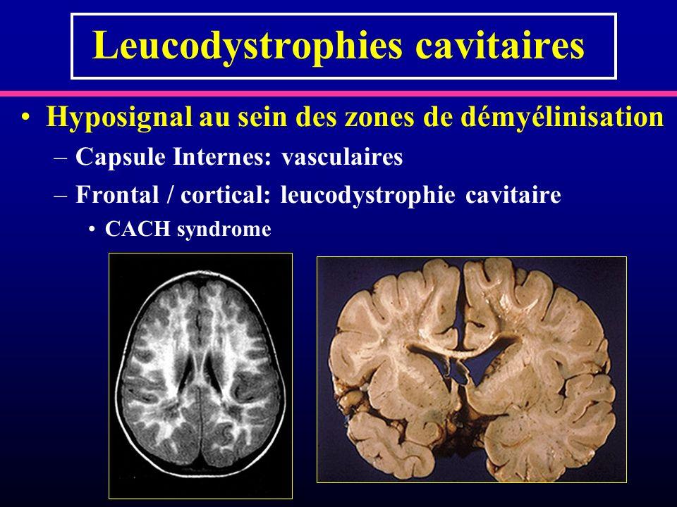 Leucodystrophies cavitaires Hyposignal au sein des zones de démyélinisation –Capsule Internes: vasculaires –Frontal / cortical: leucodystrophie cavita