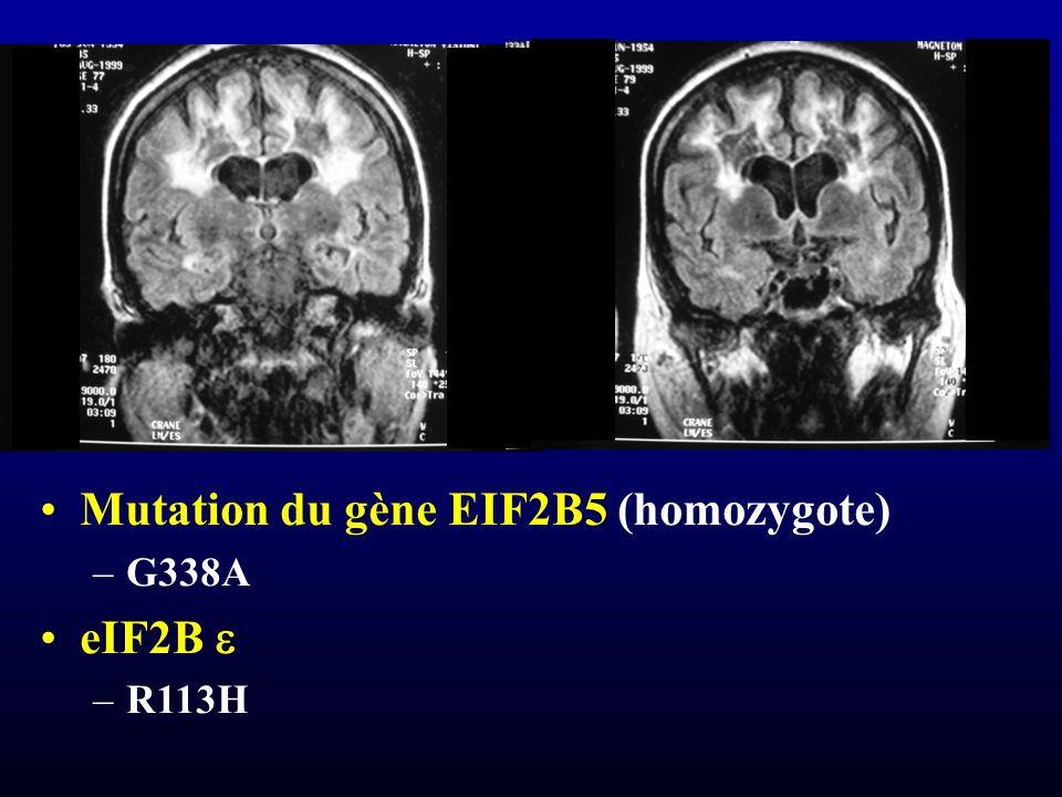 Mutation du gène EIF2B5 (homozygote) –G338A eIF2B –R113H