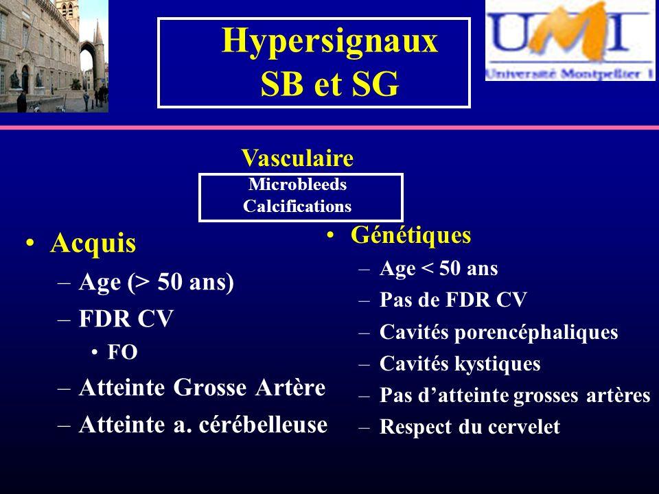 Hypersignaux SB et SG Acquis –Age (> 50 ans) –FDR CV FO –Atteinte Grosse Artère –Atteinte a. cérébelleuse Génétiques –Age < 50 ans –Pas de FDR CV –Cav