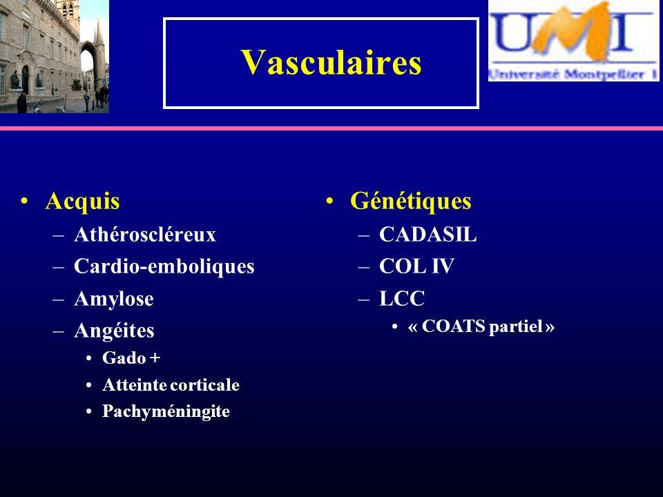 Vasculaires Acquis –Athéroscléreux –Cardio-emboliques –Amylose –Angéites Gado + Atteinte corticale Pachyméningite Génétiques –CADASIL –COL IV –LCC « C