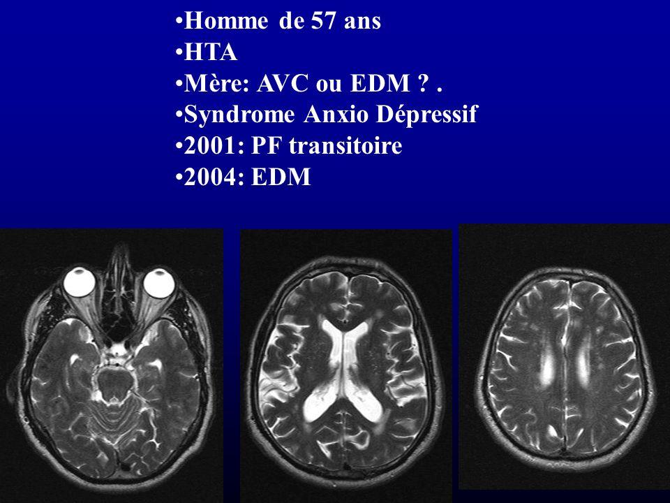 Homme de 57 ans HTA Mère: AVC ou EDM ?. Syndrome Anxio Dépressif 2001: PF transitoire 2004: EDM