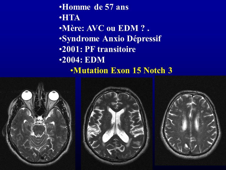 Homme de 57 ans HTA Mère: AVC ou EDM ?. Syndrome Anxio Dépressif 2001: PF transitoire 2004: EDM Mutation Exon 15 Notch 3