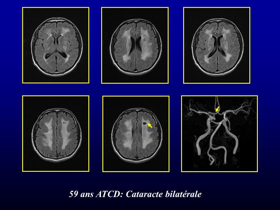 59 ans ATCD: Cataracte bilatérale