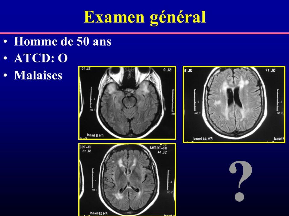 Examen général Homme de 50 ans ATCD: O Malaises ?