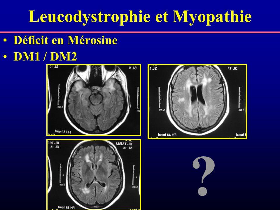 Leucodystrophie et Myopathie Déficit en Mérosine DM1 / DM2 ?