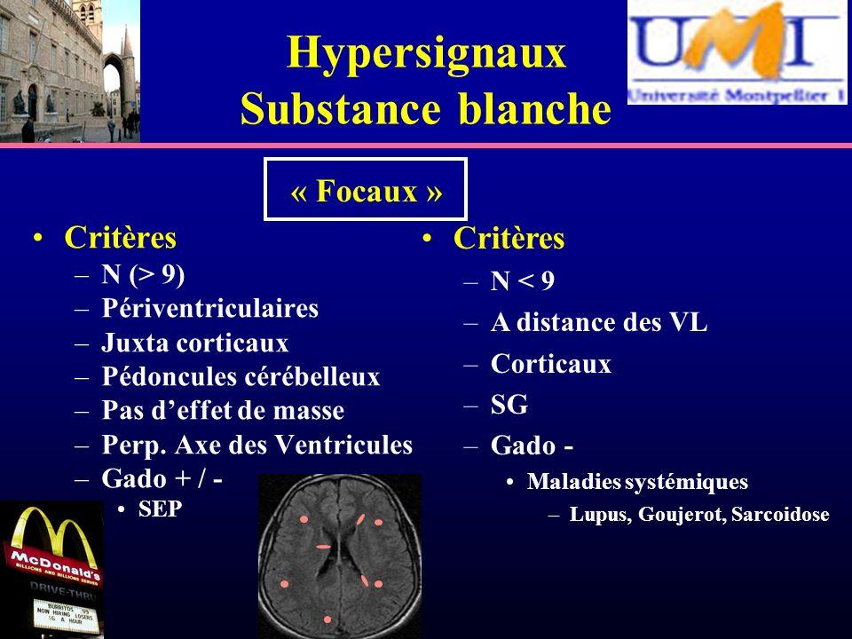 Hypersignaux Substance blanche Critères –N (> 9) –Périventriculaires –Juxta corticaux –Pédoncules cérébelleux –Pas deffet de masse –Perp. Axe des Vent