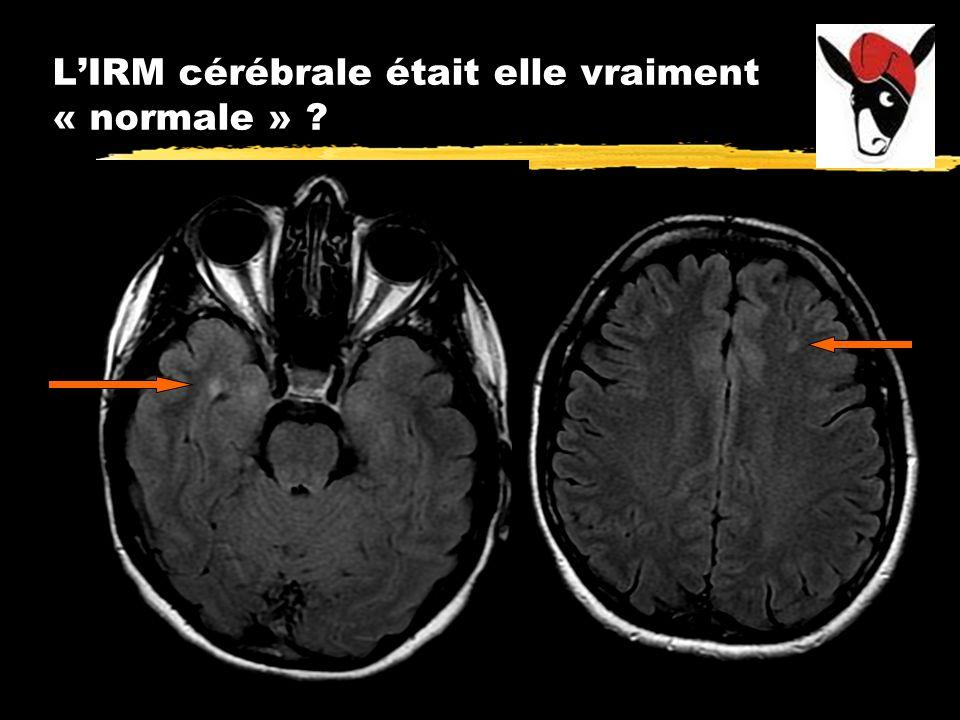 LIRM cérébrale était elle vraiment « normale » ?