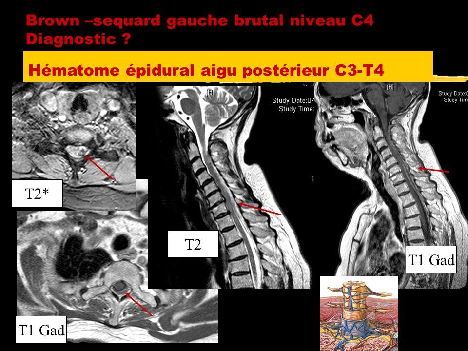 Quel risque d évolution vers une SEP devant SCI à IRM normale .