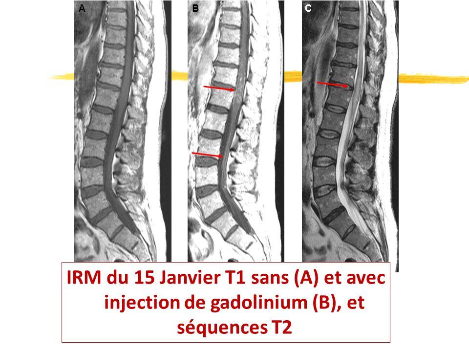 ABC IRM du 15 Janvier T1 sans (A) et avec injection de gadolinium (B), et séquences T2