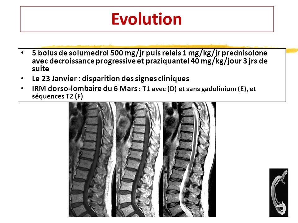 Evolution 5 bolus de solumedrol 500 mg/jr puis relais 1 mg/kg/jr prednisolone avec decroissance progressive et praziquantel 40 mg/kg/jour 3 jrs de sui