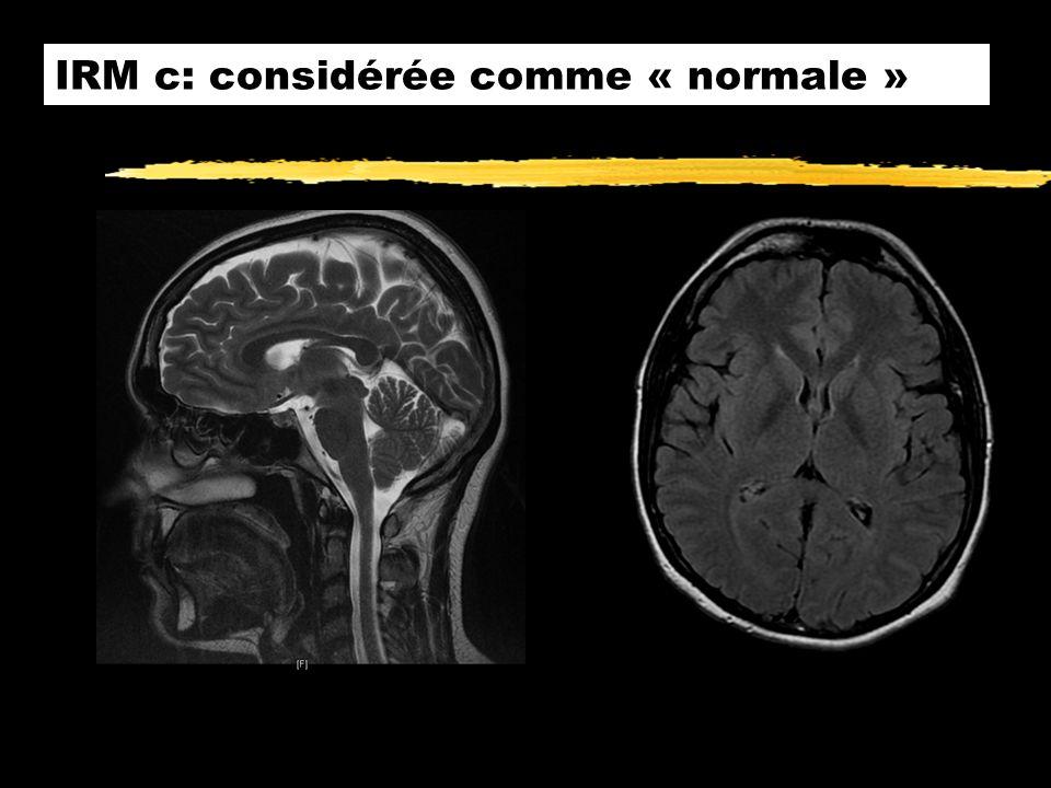 IRM c: considérée comme « normale »