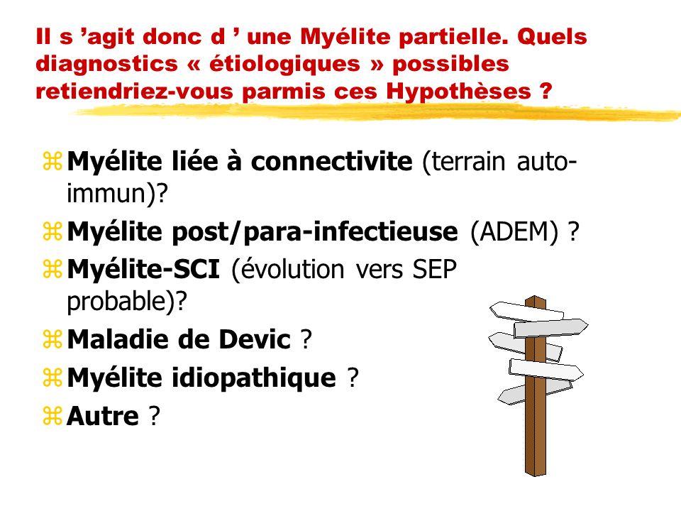 Il s agit donc d une Myélite partielle. Quels diagnostics « étiologiques » possibles retiendriez-vous parmis ces Hypothèses ? zMyélite liée à connecti