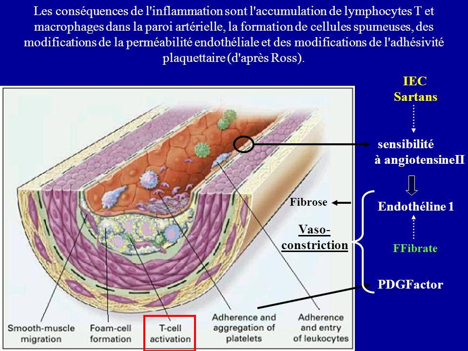 Les conséquences de l'inflammation sont l'accumulation de lymphocytes T et macrophages dans la paroi artérielle, la formation de cellules spumeuses, d