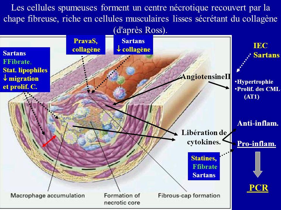 Les cellules spumeuses forment un centre nécrotique recouvert par la chape fibreuse, riche en cellules musculaires lisses sécrétant du collagène (d'ap