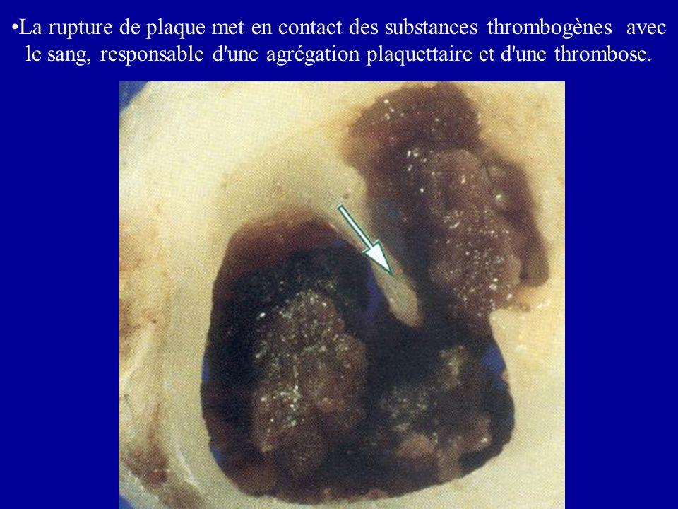 La rupture de plaque met en contact des substances thrombogènes avec le sang, responsable d une agrégation plaquettaire et d une thrombose.