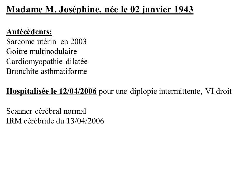 Madame M. Joséphine, née le 02 janvier 1943 Antécédents: Sarcome utérin en 2003 Goitre multinodulaire Cardiomyopathie dilatée Bronchite asthmatiforme