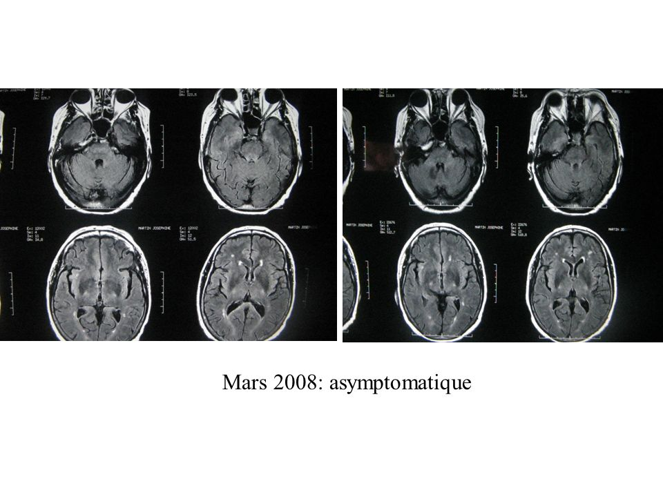 Mars 2008: asymptomatique