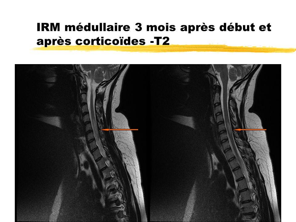 IRM médullaire 3 mois après début et après corticoïdes -T2