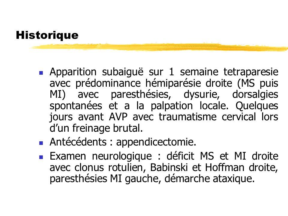Historique Apparition subaiguë sur 1 semaine tetraparesie avec prédominance hémiparésie droite (MS puis MI) avec paresthésies, dysurie, dorsalgies spo