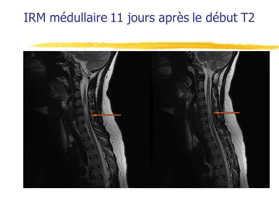 IRM médullaire 11 jours après le début T2