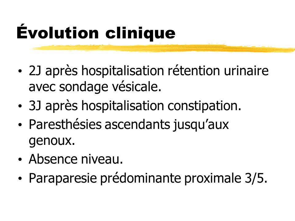 Évolution clinique 2J après hospitalisation rétention urinaire avec sondage vésicale. 3J après hospitalisation constipation. Paresthésies ascendants j