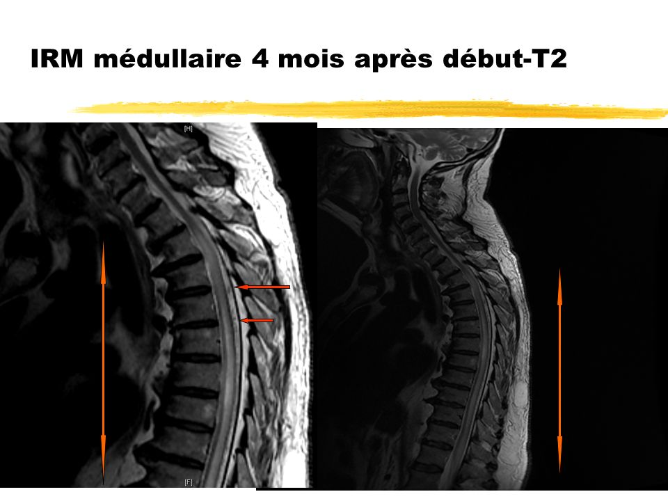 IRM médullaire 4 mois après début-T2
