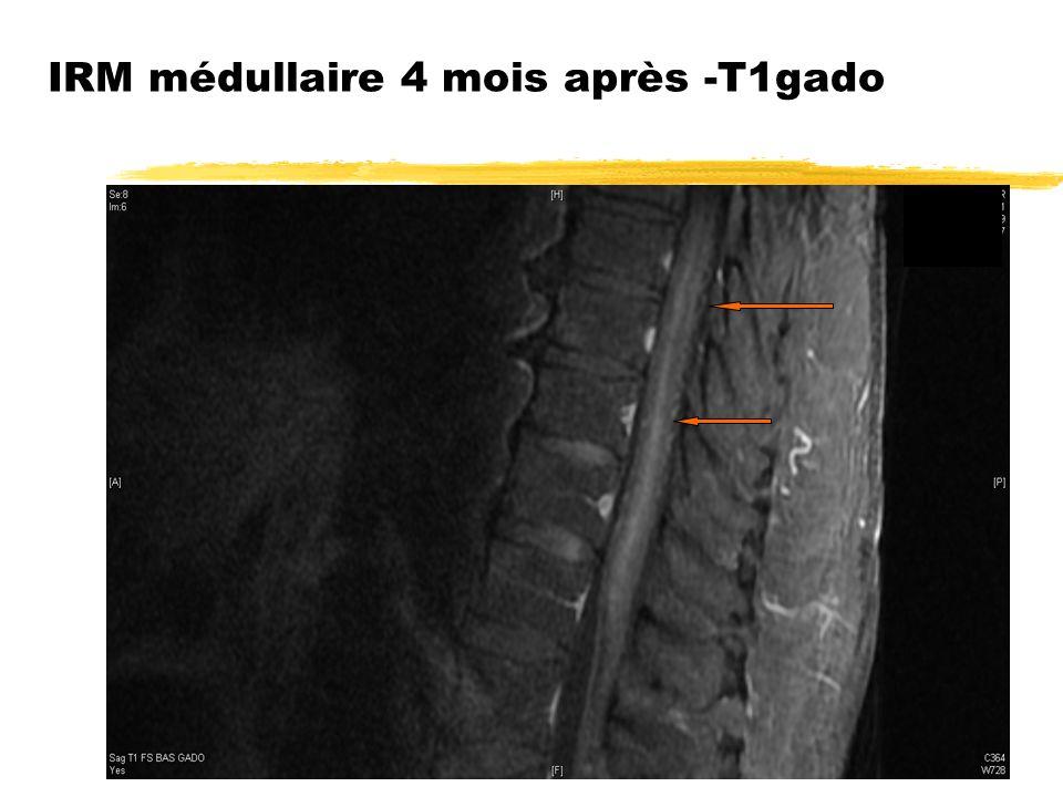 IRM médullaire 4 mois après -T1gado