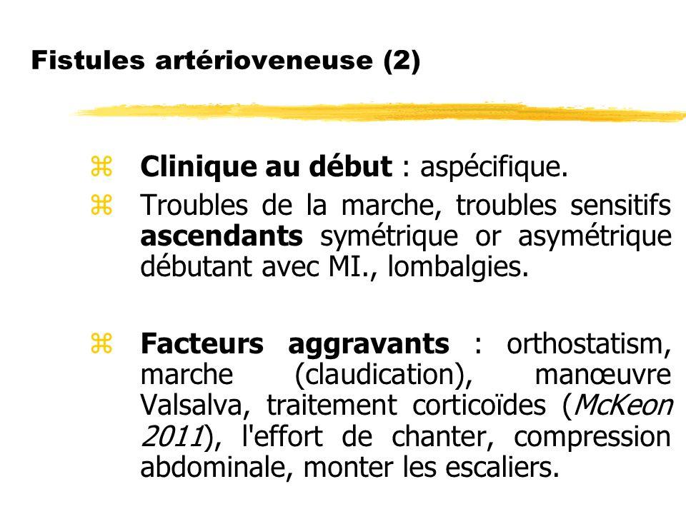 Fistules artérioveneuse (2) Clinique au début : aspécifique. Troubles de la marche, troubles sensitifs ascendants symétrique or asymétrique débutant a