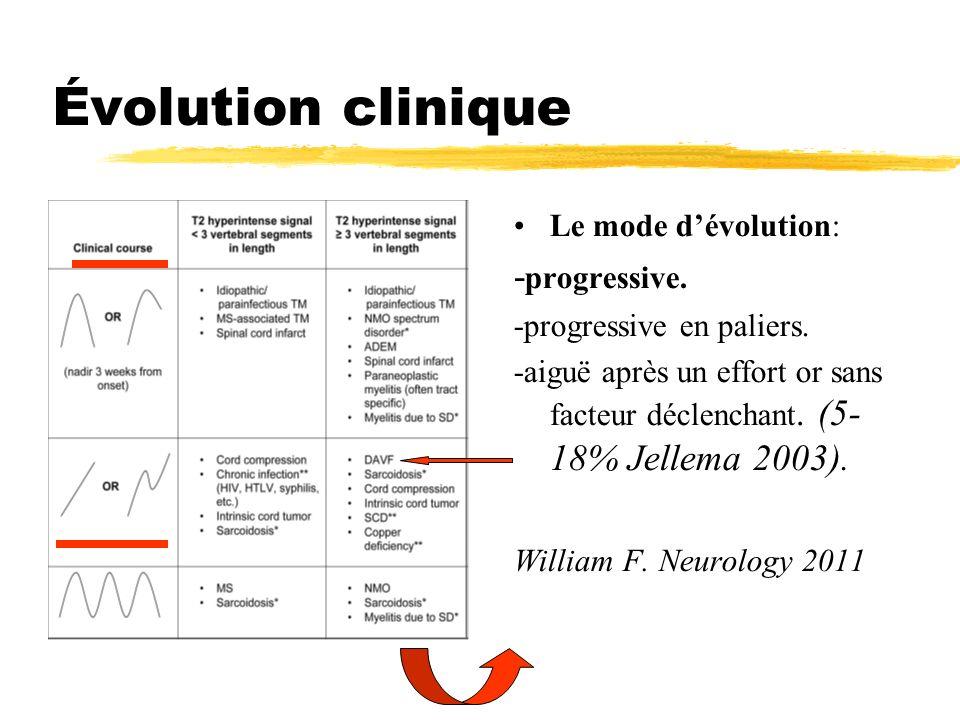 Évolution clinique Le mode dévolution: - progressive. -progressive en paliers. -aiguë après un effort or sans facteur déclenchant. (5- 18% Jellema 200