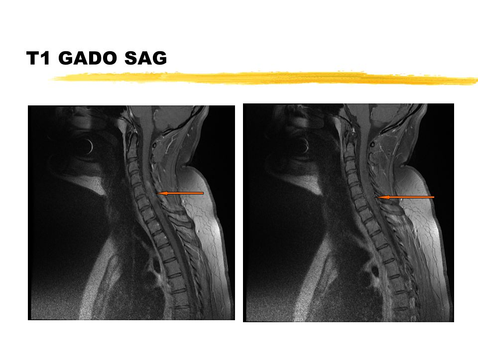 IRM médullaire J1-T2 et T1 GADO