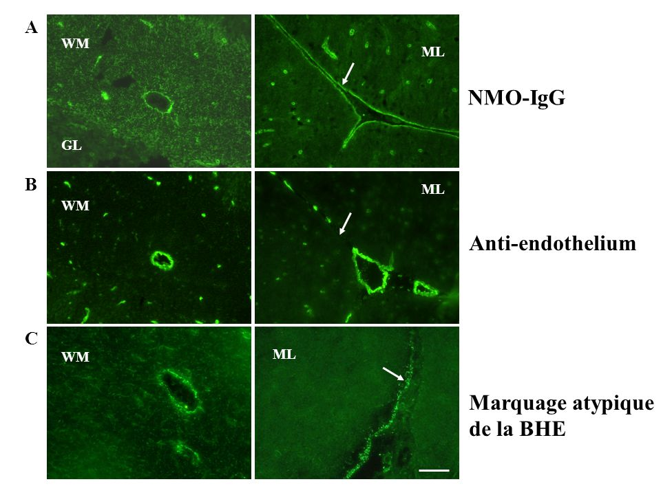 A B C WM GL ML WM ML WM NMO-IgG Anti-endothelium Marquage atypique de la BHE