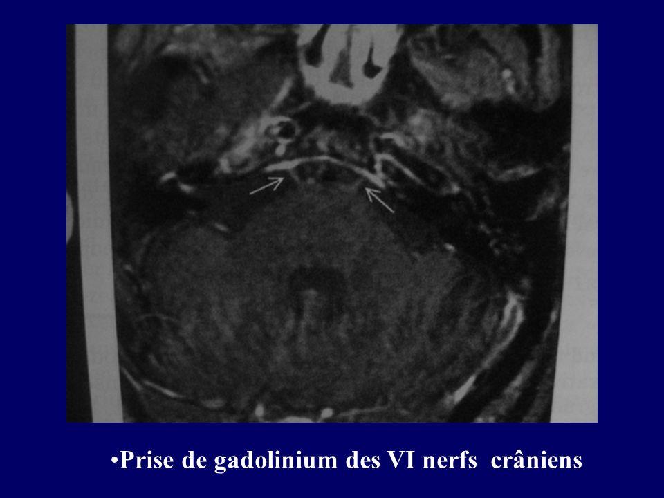 Prise de gadolinium des VI nerfs crâniens
